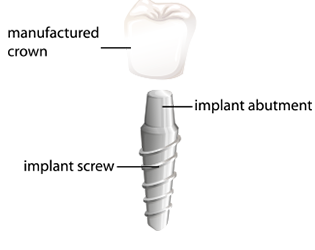 dental implants procedure Canada